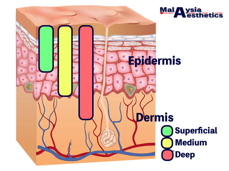 the popularity of deep chemical peels in malaysia has plummeted over recent  years as more and more medical aesthetic clinics in malaysia offer laser
